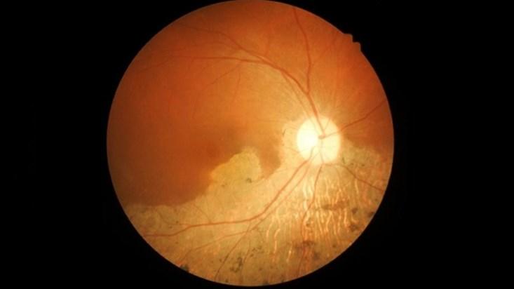 Перепрограммировать клетки сетчатки, чтобы лечить болезни зрения