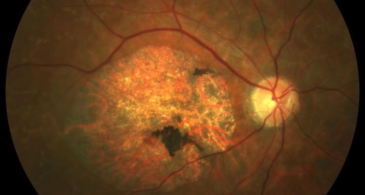 Разработана комбинация лекарств, которая может предотвратить потерю зрения от дистрофии сетчатки