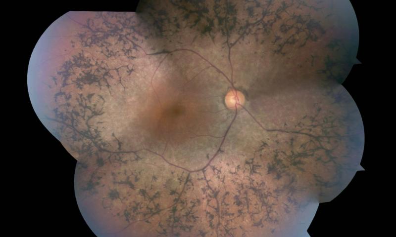 Пигментный ретинит можно лечить, перепрограммируя метаболизм фоторецепторов