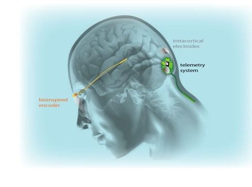 Имплантат, который позволяет слепым видеть в обход системы зрения