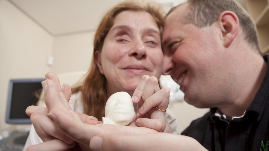 Врач использовал 3D-принтер, чтобы показать невидящей беременной женщине ее будущего ребенка