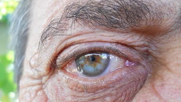 Дупиксент как препарат лечения возрастной макулярной дистрофии