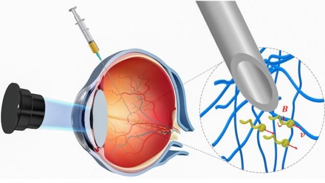 Нанороботы для лечения заболеваний сетчатки