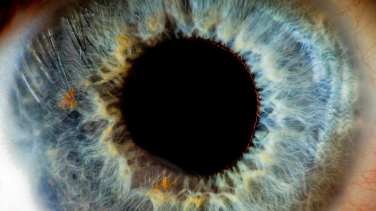 Second Sight начинает испытания имплантата Orion, предназначенного для восстановления зрения