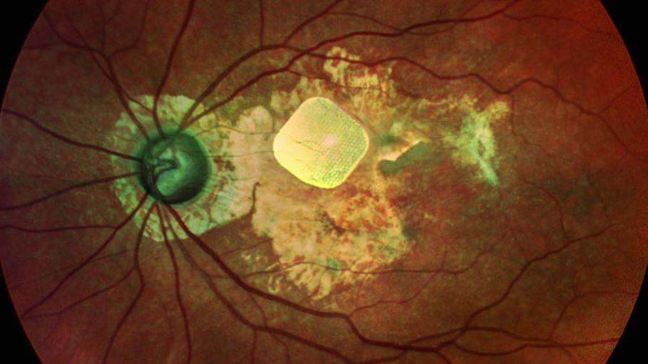Бионические очки следующего поколения для невидящих