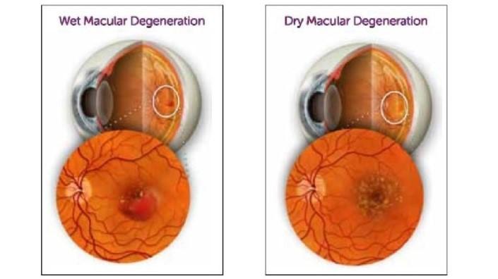 Флуоресцентная визуализация для раннего обнаружения болезней сетчатки